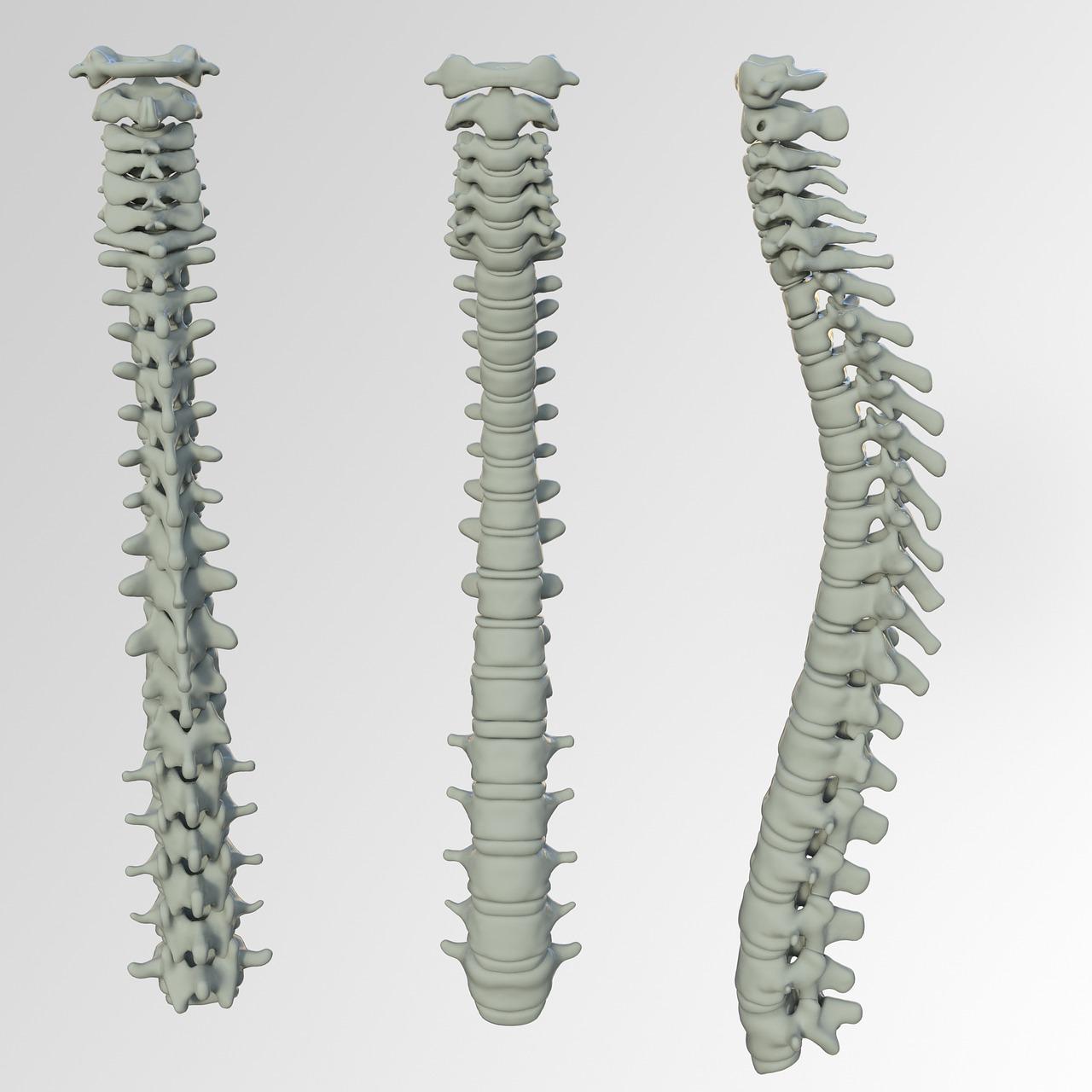 Spinal Screenings Parma, OH